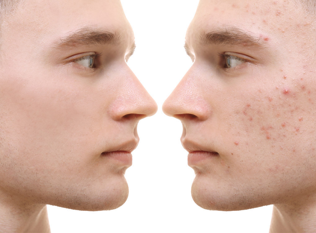 Men and Acne: What you need to know